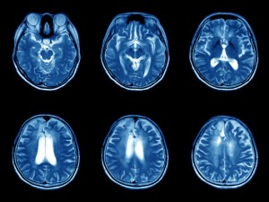 MRIs of the human brain