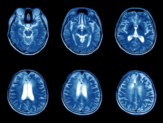 MRIs of the human brain